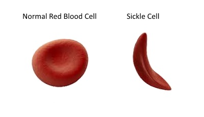 download sickle cell diagram clipart red blood cell sickle cell disease Blood Cell Diagram Labeled