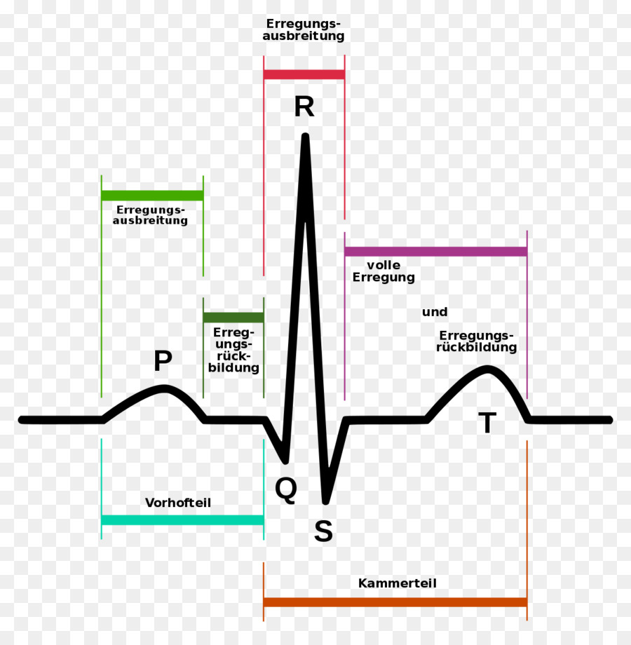 Download Ecg Annotation Clipart Electrocardiography Qrs Complex P Electrocardiogram Diagram Electrocar Diogram Wave